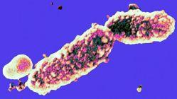 Původce černého kašle je mistrem v manipulaci s imunitou. Čeští vědci ukazují proč