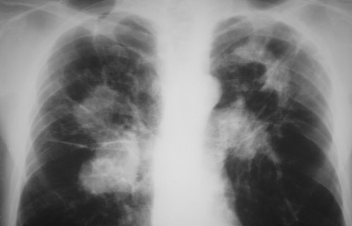 Čeští vědci mají klíč knovému léku proti tuberkulóze