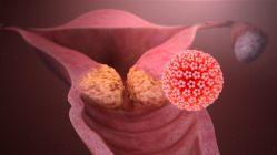 Očkujte své děti proti HPV
