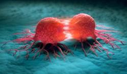 Jak bude Česko bojovat proti rakovině?