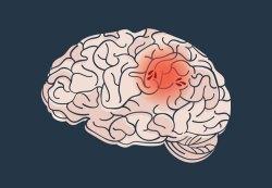 Hodinky, které pomáhají lidem po mozkové mrtvici