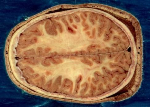 Brněnští vědci objevili geny rakoviny mozku