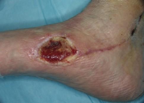 Jak se hojí poraněná tkáň?