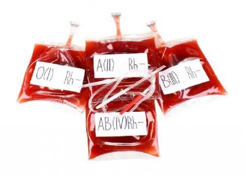 Krevní skupina ovlivňuje paměť