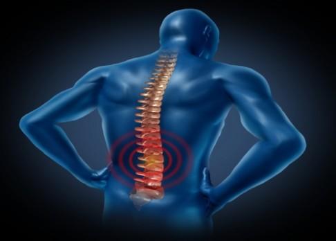 Neinvazivní operace přináší úlevu od bolesti zad