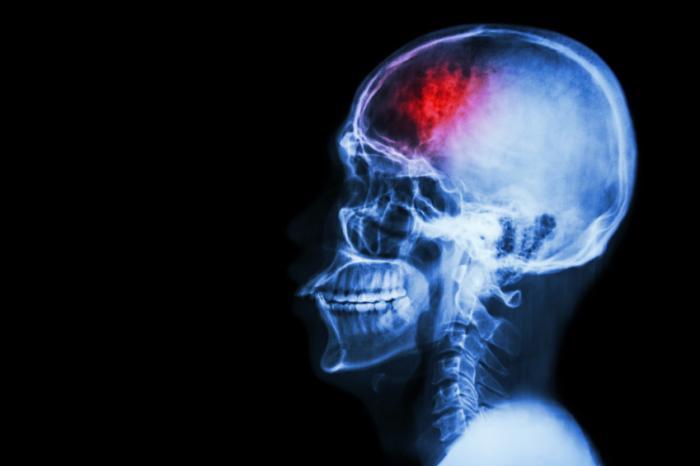 Микроинсульты могут быть связаны сразвитием деменции