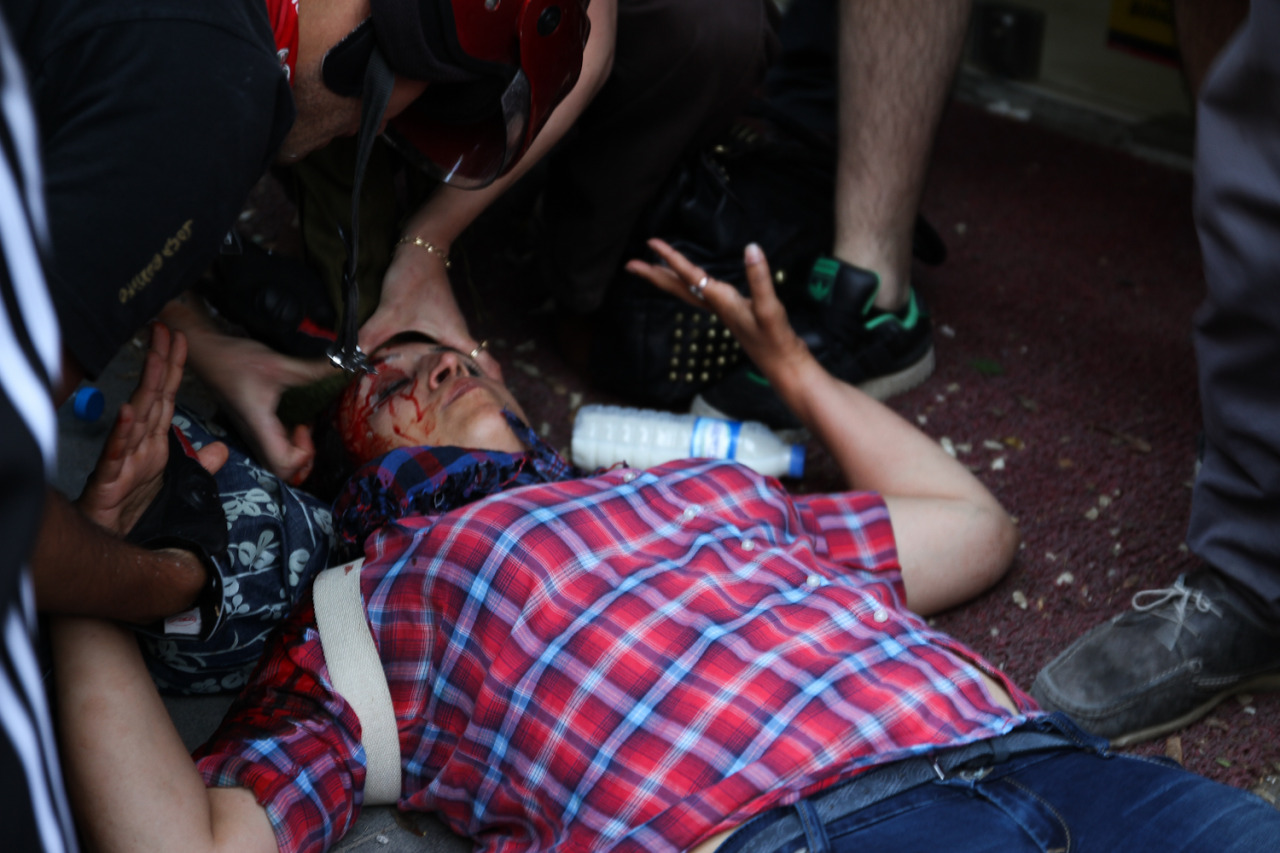 ANKARA-KIZILAYAnother protester hit in the head.