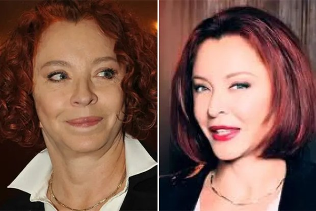 Анастасия Вертинская до и после пластики