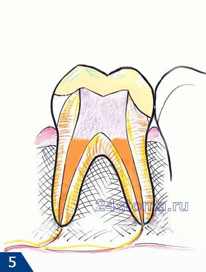 Restaurering af tandkronen med tætningsmateriale