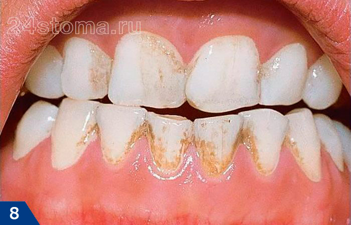 Bruin overval op de tanden tegen de achtergrond van consumptie van een grote hoeveelheid koffie. Houd er rekening mee dat de pigmentatie plaatsvond in die gebieden waar de tanden bedekt zijn met een laag microbiële plaquette.