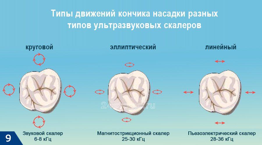 Больно ли удаляется зубной камень. Методы снятия твердых отложений, больно ли удалять зубной камень