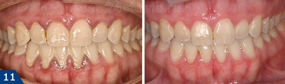 درمان Gingivitis Catarrhal: عکس قبل و بعد