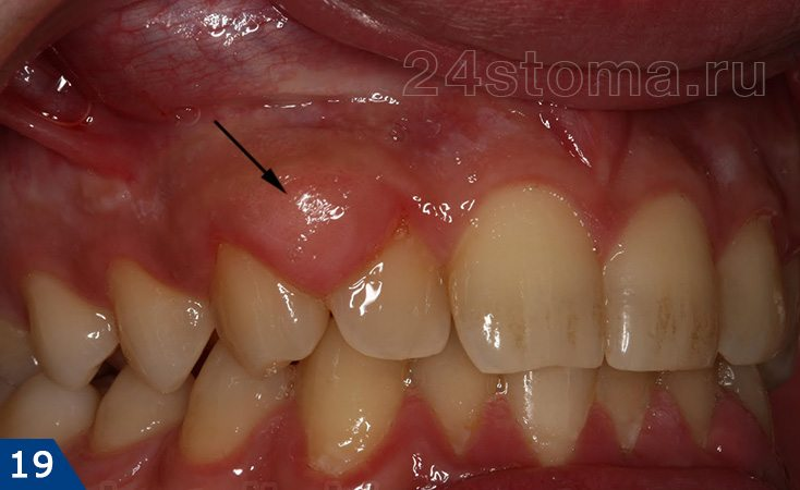 上部咀嚼の2本の歯の領域に局在する肥大性歯肉炎の繊維状の形態