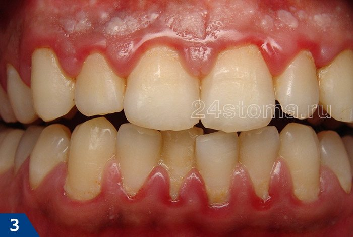 گینوییت کاتالیستی (توجه به خوشه های یک پلاک دندانی نرم در اطراف گردن دندان ها، و همچنین قرمزی لثه