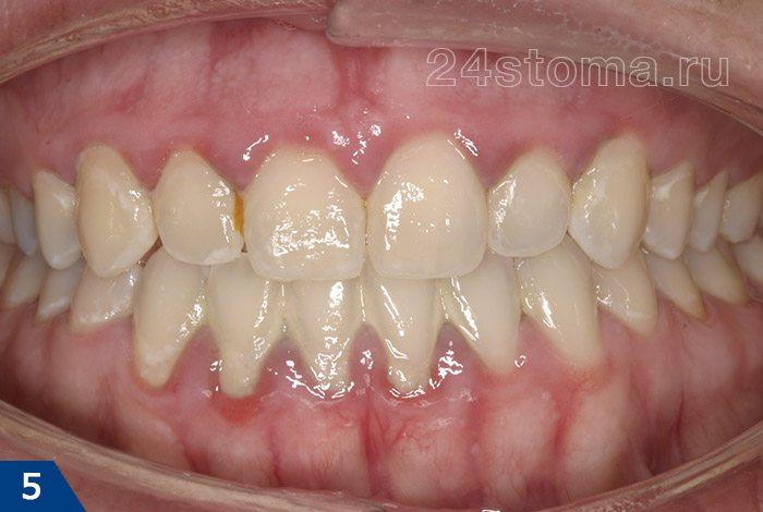 カチオン歯肉炎(柔らかいプラークの欠如がないと、柔らかいプラークがないことを示す、端部ガムの略い洞性、フィット歯科堆積物の存在を示す)