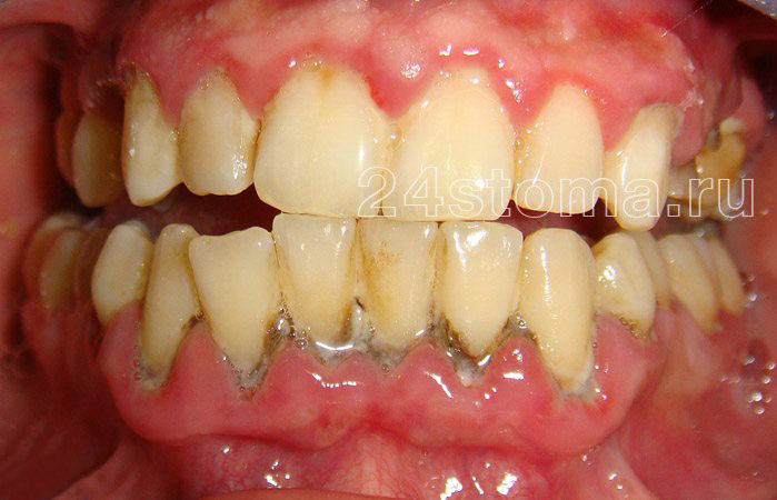 Sólidos sobre los depósitos dentales en el campo de los dientes inferiores (hay síntomas de inflamación de encías - periodontitis, incluido el purulento separado de los bolsillos periodontales)