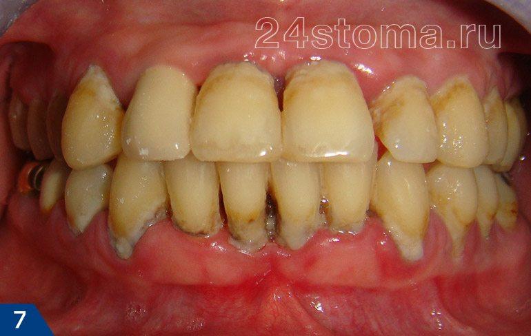 Krónikus periodontitis (lágy mikrobiális plakkok klaszterei, a fogorvosi üledékek, a gumi atrófia ...)