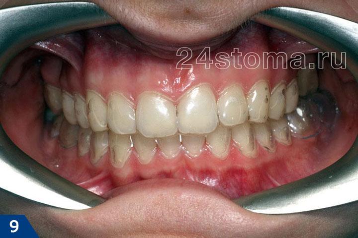 Вид зубов верхней и нижней челюсти с надетыми индивидувльными зубными каппами