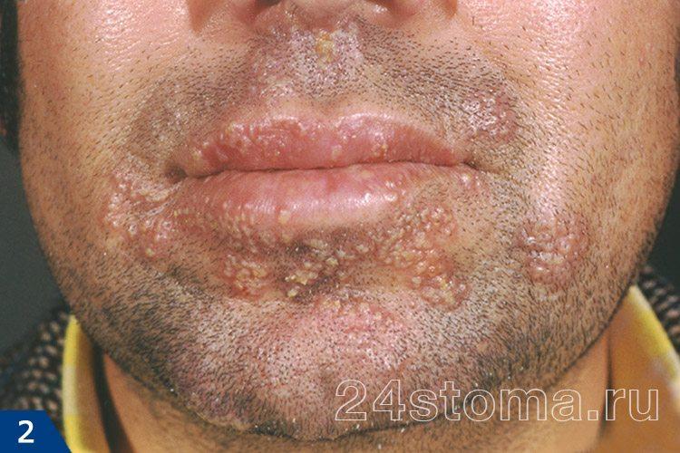 آسان ویروس هرپس بر روی پوست صورت