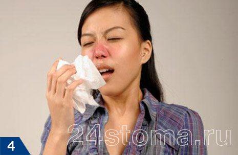 En sık, sinüzit, orvi ve grip ile akut burun akıntısının arka planına karşı gelişir.