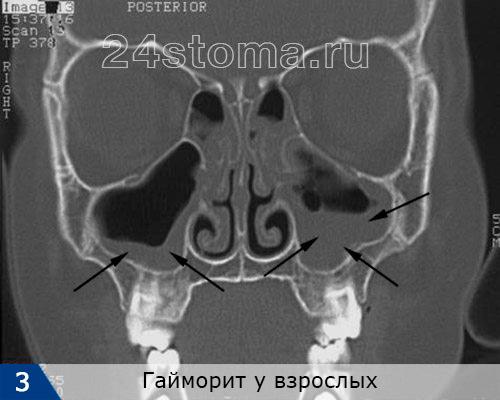Химоровый синустың компьютерлік томографиясы (синустар олардағы қабынудың болмауынан қалай көрінеді)