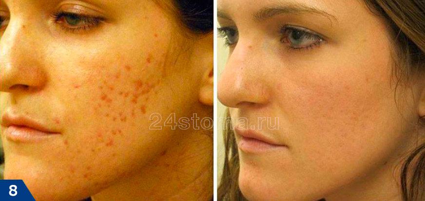 Kezelés lézerrel piros foltok után akne (fotó előtt és után)