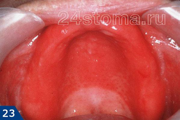 Alergická protetická stomatitida (ostrá zarudnutí tkáně protetické postele, ke kterému je vyměnitelná protéza vhodná)