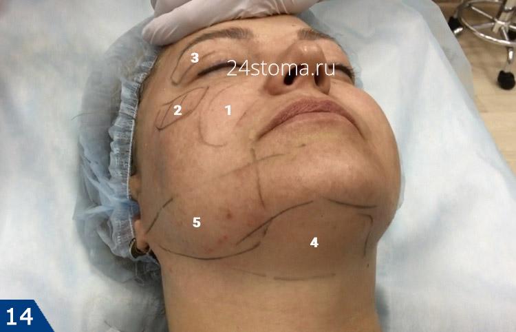 Zone di correzione Lipolitica su viso e collo