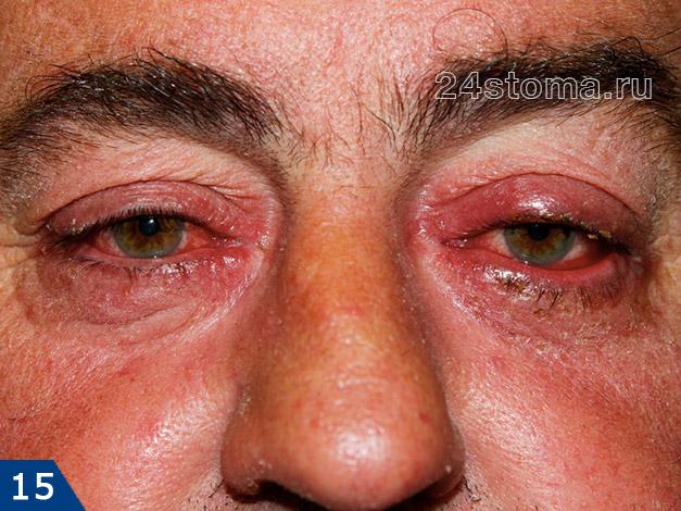 Офтальморозацеа (тяжелая степень)