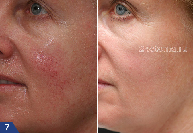 Фото до и после лечения телеангиэктазий лазером на красителях