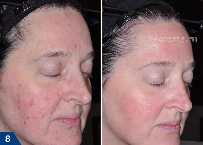 Розацеа: фото до и после 12 недель применения Ивермектина