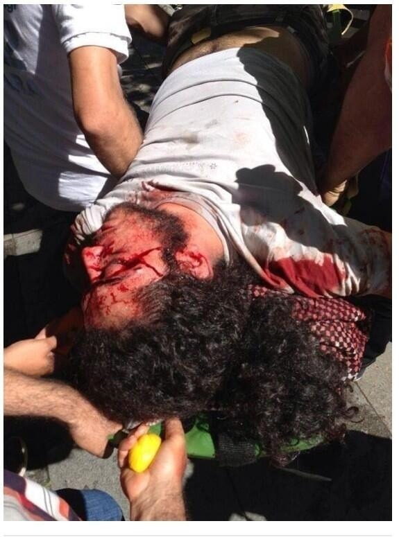 The young man shoot on the head in Ankara