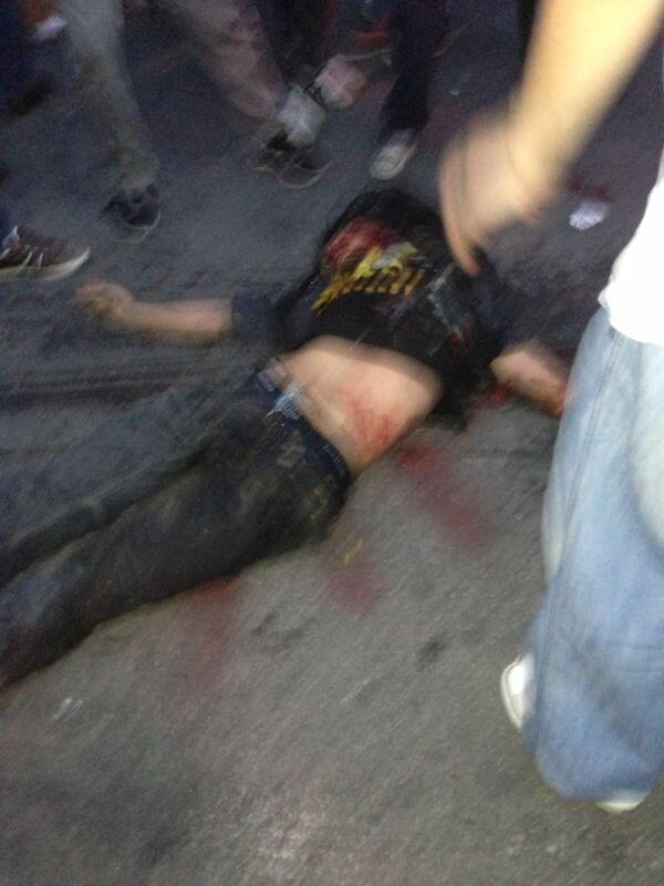 In Ankara, one of hundreds of wounded demonstrators
