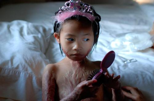 collective-history:  A Vietnamese girl, dressed up as a princess after being treated for burns.