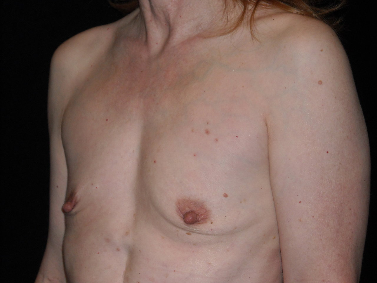 Flat chested saggy tits right!