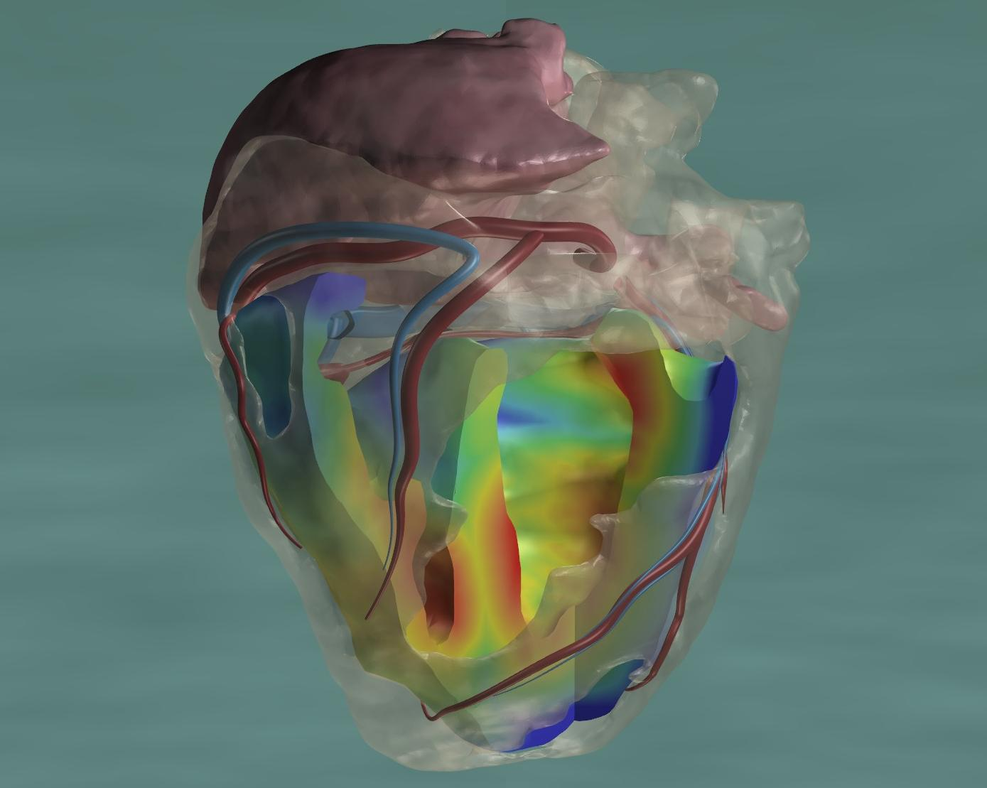 Supercomputer Creates Most Advanced Heart Model