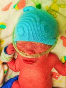 NICU Baby Fankie 4