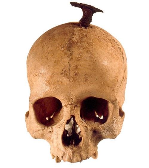 Cráneo enclavado (MAC)