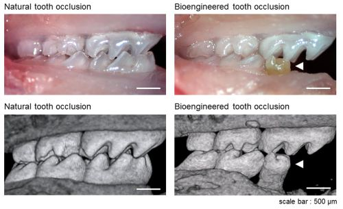 """Wow!! They're making teeth!! They've got a way to go - but just wow!! The article talks about how they made some teeth from stem cells. You can see from the lower right picture that there's not much bone around the """"implanted"""" tooth, but that's more a problem with the jaw holding the tooth than a problem with a!!!!man made tooth!!!!!"""