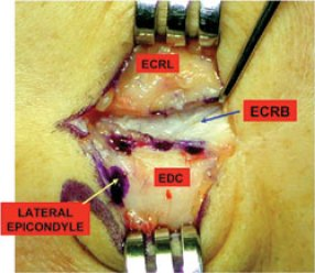 lateral-epicondyle