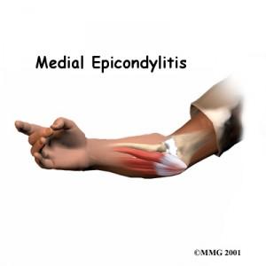 medial-epciondylitis