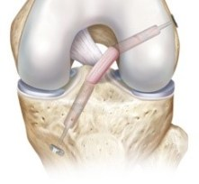 acl-reconstruction
