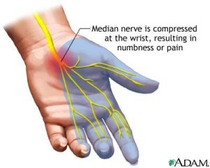 cubital-tunnel-syndrome-2