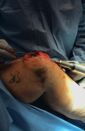 patellar-tendon-quadriceps-tendon-repair-14