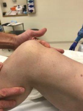 patellar-tendon-quadriceps-tendon-repair-8