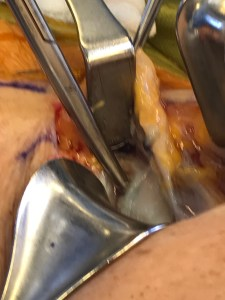 bakers-cyst-3