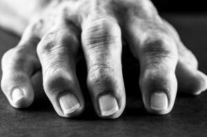 Arthritis-Rockett-rudisill