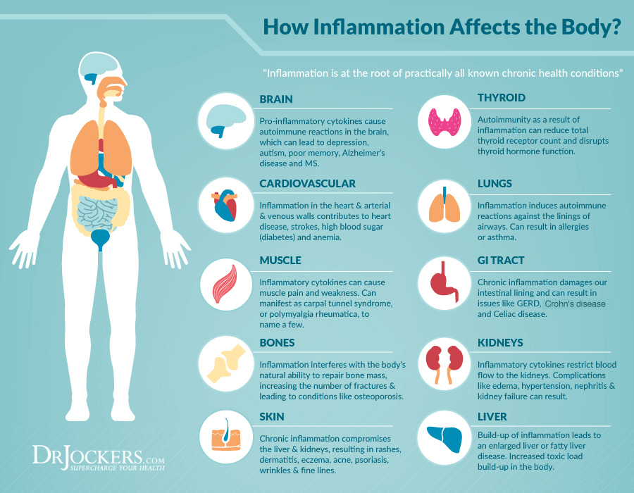 5 Ways To Reduce Inflammation Quickly - DrJockers.com