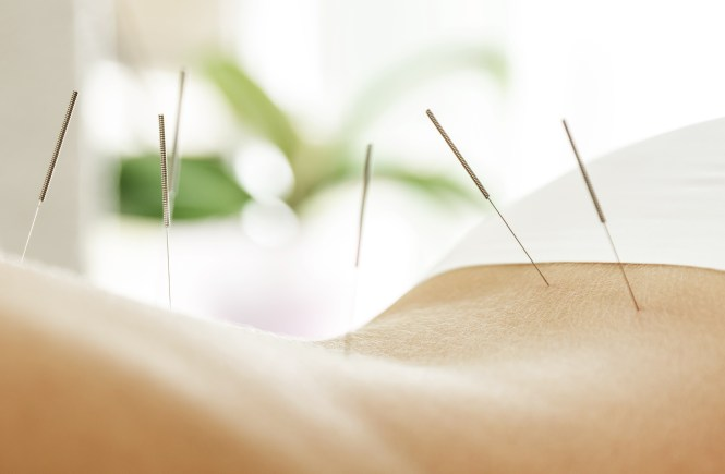 Should-YOu-Try-Acupuncture-?-PRO-Sports