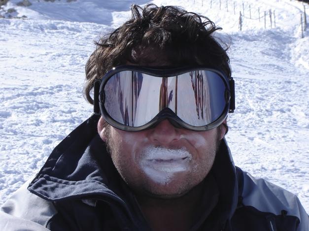 Post - Winter Sunburn